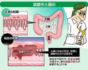 原因不明・完治困難「潰瘍性大腸炎」…薬で炎症抑え、寛解維持が治療の基本