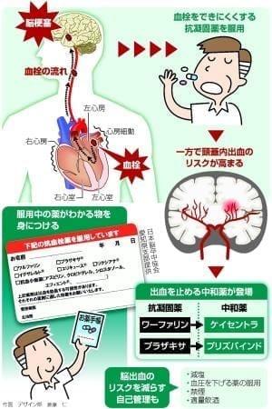 抗 血小板 薬 抗 凝固 薬