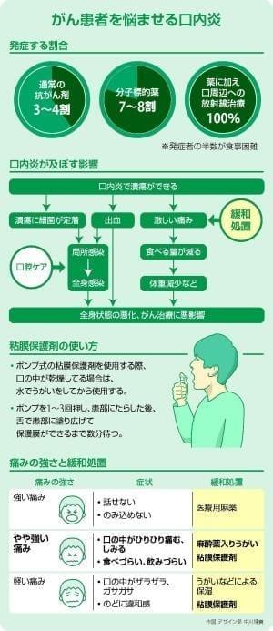 がん患者の口内炎対策…粘膜保護剤で痛み緩和