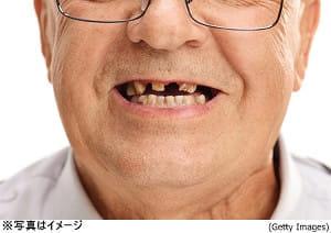 歯の数と睡眠トラブルは関係する!?
