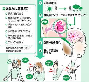気象病…気圧低下自律神経に乱れ、両耳のマッサージ有効