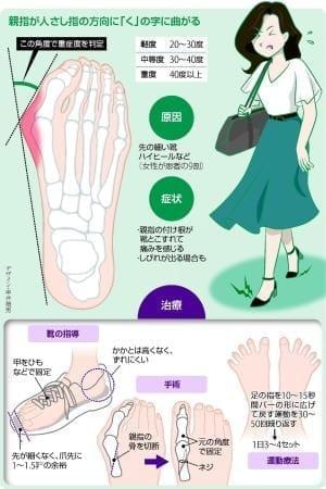 外反母趾 悪化すると手術も…初期段階で足に合う靴に