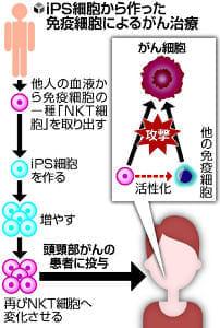 iPS細胞でがん治療、「頭頸部」患者治験へ…理研・千葉大チーム