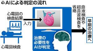 AIが心電図判定、治療が必要かどうかを高精度で見極め…慶大助教ら開発