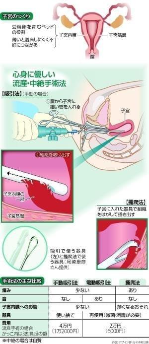 初期流産の手術「手動吸引法」…子宮の傷や後遺症少なく
