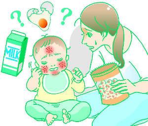 食物アレルギー(4) 離乳食 2時間以内に異変