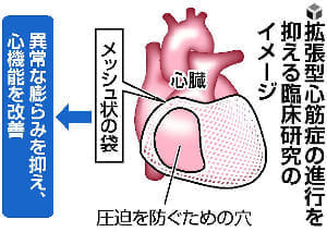 心臓の膨らみ、袋で抑制…難病「拡張型心筋症」治療法、今春にも臨床研究へ