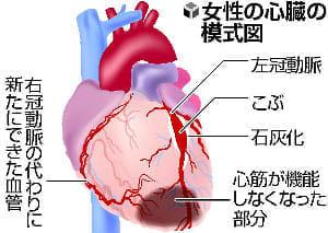 川崎病のいま(4)発症気づかず半世紀