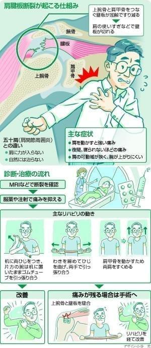 肩腱板断裂 50歳以上の4人に1人…早めに診断してリハビリ