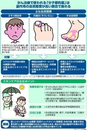 がん治療薬 副作用で皮膚障害…スキンケア 症状軽減