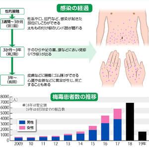 増え続ける梅毒患者\u2026しこりや発疹受診早く  yomiDr. / ヨミ