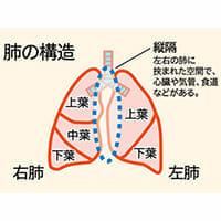 肺がん(上)「人間ドック受けていたのに」「レントゲンに写らなかった」 ……いきなり「ステージ4」、検診の限界