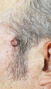 皮膚がん(1)治りにくい「イボ」に注意