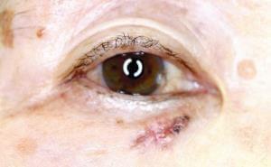 皮膚がん(2)紫外線で高まる発症率