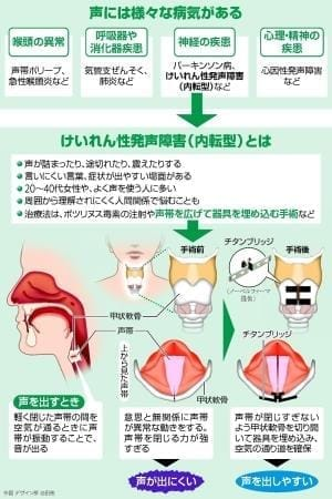けいれん性発声障害…神経疾患 声出にくく