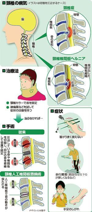 ヘルニア 頸椎 症状 椎間板