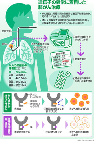 肺がん 薬物療法…複数遺伝子 一気に検査
