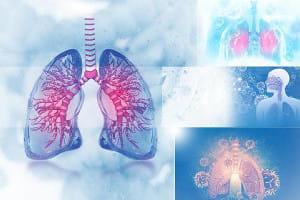 小細胞肺がんに初の免疫療法薬が承認