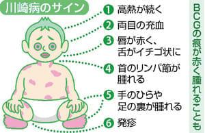 病気のサイン(4)川崎病 高熱続き両目充血