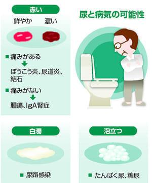 尿で病気がわかるの?