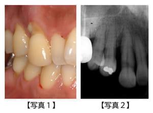 この歯は本当に、抜かなければいけないのか