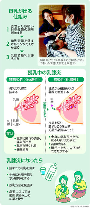授乳期に起きる乳腺炎…早めの対策 重症化防ぐ