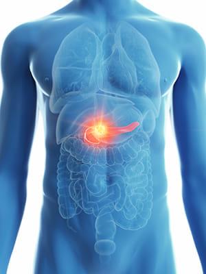 なぜ「膵臓がん」は最悪のがんなのか?