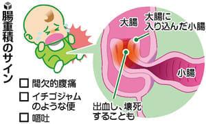 病気のサイン(6)腸重積 繰り返す腹痛と赤い便