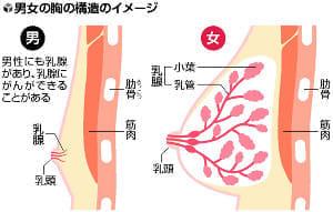 男性にも乳がん(1)1%の仲間求め「メンズ会」