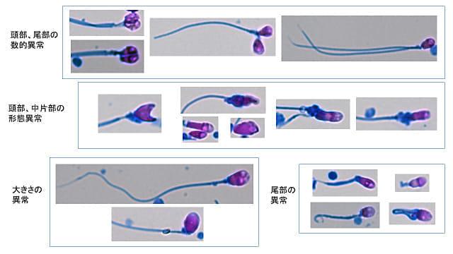 個々の精子の異常をまとめた図