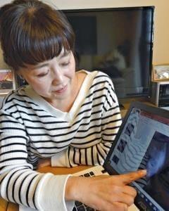 乳がん診療の課題(1)検診で乳房タイプ確認を