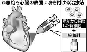 心不全 細胞スプレー治療…心臓表面に吹き付け