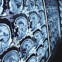 認知症治療薬の最有力候補、治験中止から承認申請へ…前代未聞の大逆転なるか?