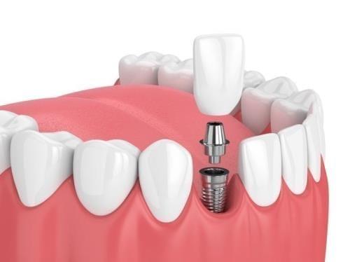 インプラントはいい治療だが、危ない歯科医はいる…歯科医をどう選ぶ?