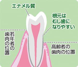 「健口」で健康(3)歯肉やせ 根元むし歯増加