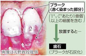 「健口」で健康(4)食べたらすぐに歯磨き