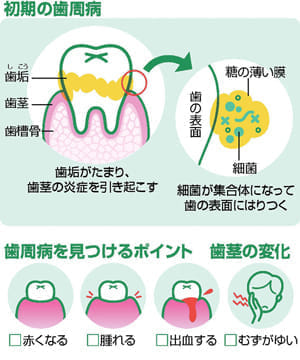 歯茎の腫れ、出血ないですか?