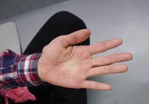 全身湿疹 手荒れもひどく、わが子を手袋で世話した女性 どう治した?