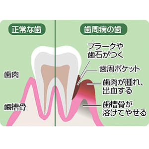 「健口」で健康(5)磨き残し除去し歯周病予防