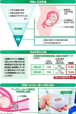 変わる早産対策…張り止め点滴 短期も