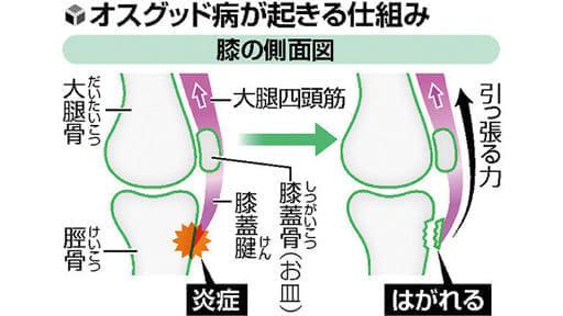 成長期のスポーツ(5)膝の使いすぎ、骨傷める恐れ
