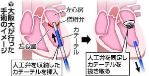 重い心臓病 カテーテル手術…阪大、人工弁取り付け成功