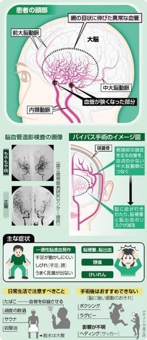 脳梗塞 もやもや病かも…血流補う手術 有効
