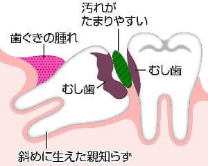 「健口」で健康(9)親知らず抜き虫歯予防
