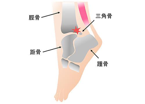 バレリーナに多い、足の後方の痛みは……