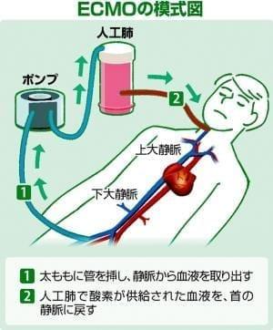人工肺「エクモ」って何?