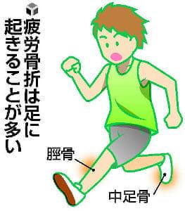 成長期のスポーツ〈10〉疲労骨折ストレッチで予防
