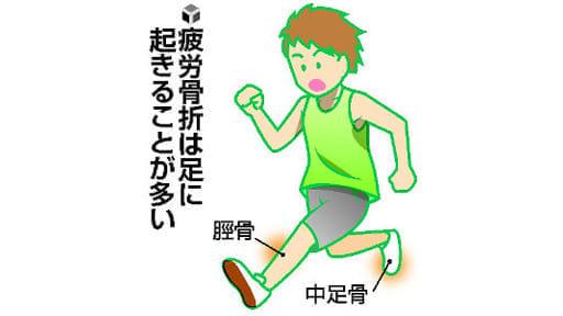 成長期のスポーツ(10)疲労骨折 ストレッチで予防