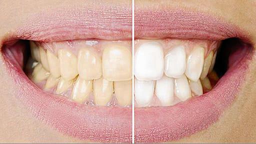 「健口」で健康(13)歯の漂白 通院と自宅処置必要