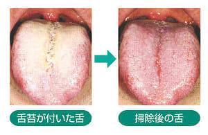 健口」で健康(15)舌掃除 口臭や病気防ぐ : yomiDr./ヨミドクター ...